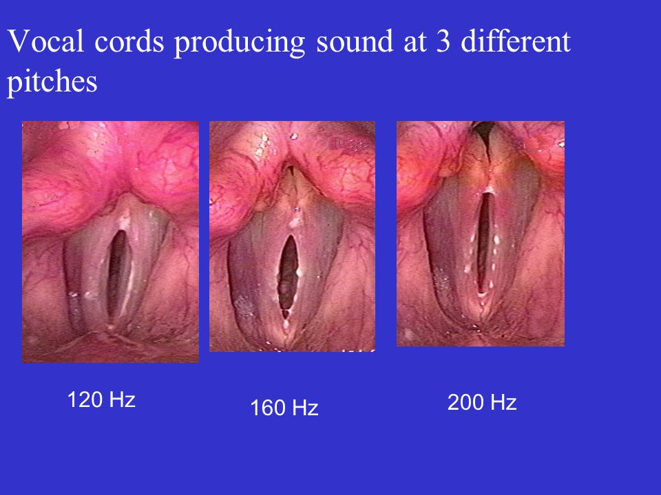 Vocal cords producing sound at 3 different pitches