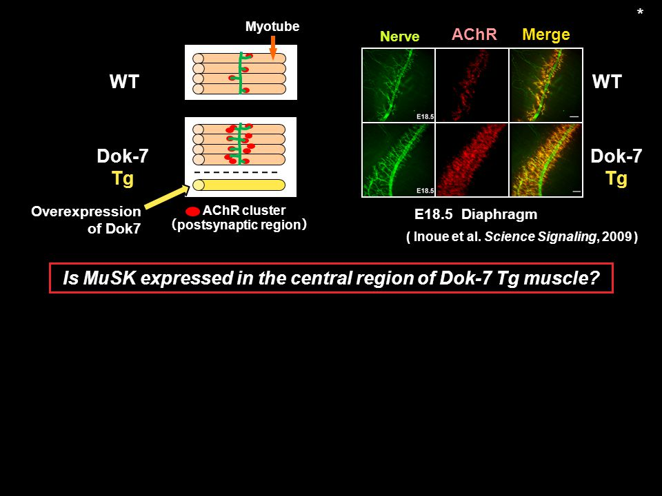 Is MuSK expressed in the central region of Dok-7 Tg muscle