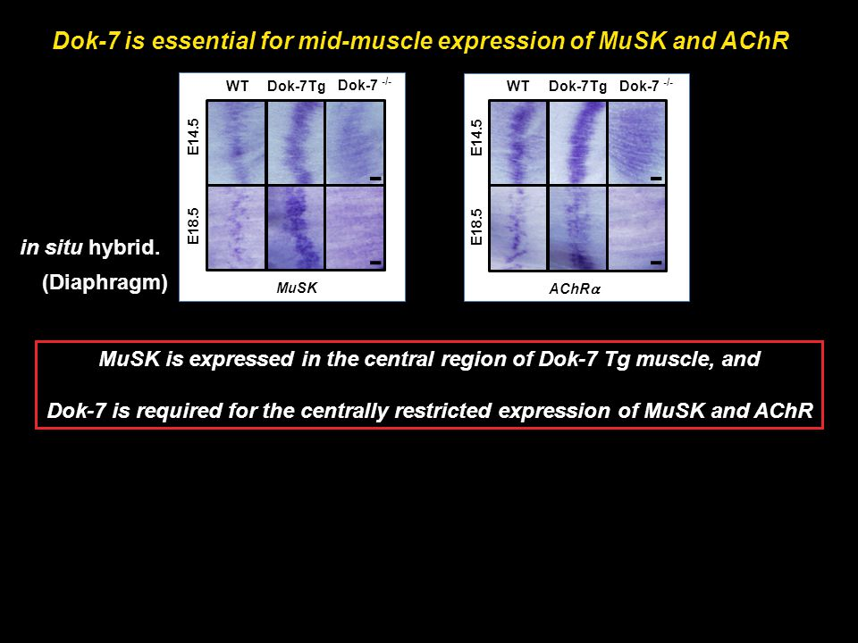 MuSK is expressed in the central region of Dok-7 Tg muscle, and