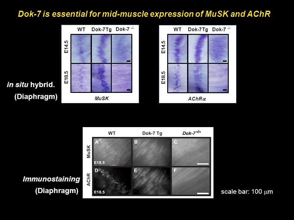 Dok-7 is essential for mid-muscle expression of MuSK and AChR