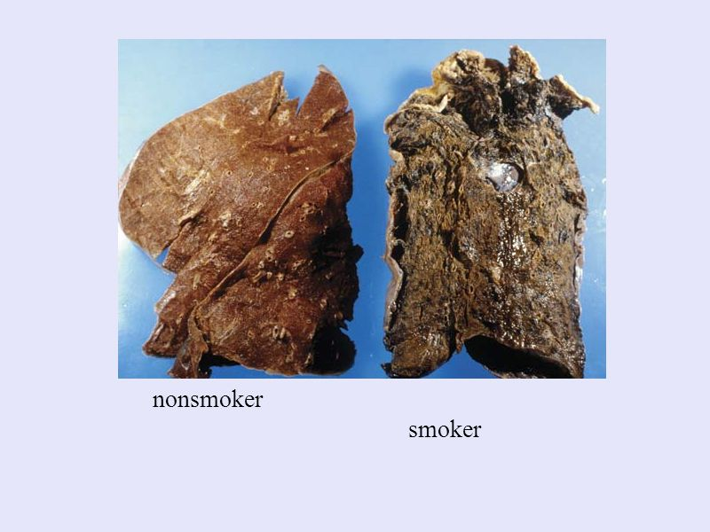 nonsmoker smoker