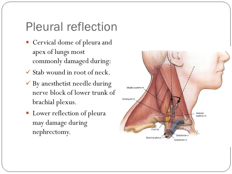 Pleural reflection Cervical dome of pleura and apex of lungs most commonly damaged during: Stab wound in root of neck.