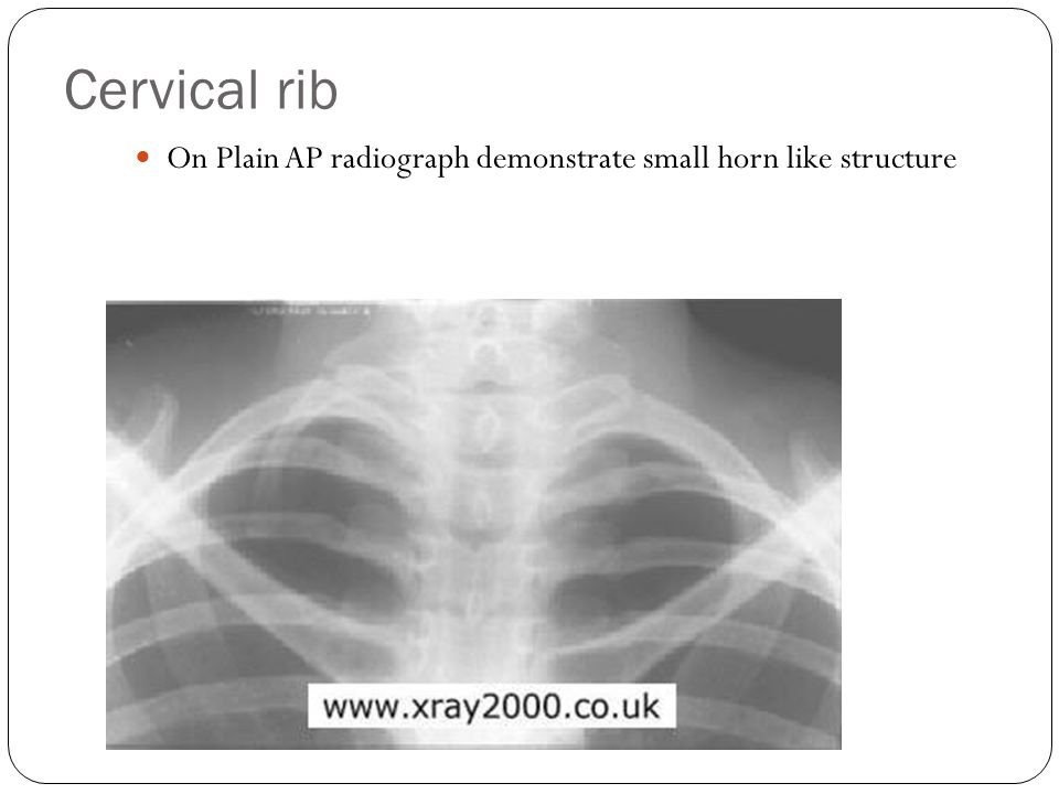 Cervical rib On Plain AP radiograph demonstrate small horn like structure