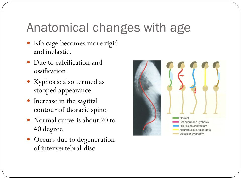 Anatomical changes with age
