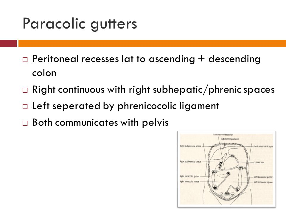 Paracolic gutters Peritoneal recesses lat to ascending + descending colon. Right continuous with right subhepatic/phrenic spaces.