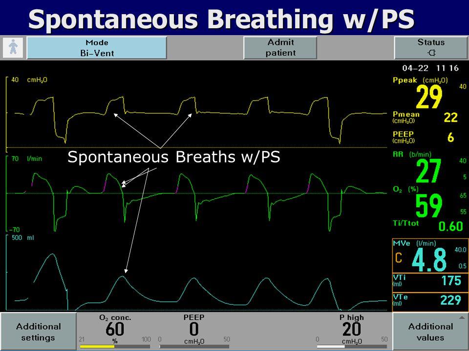 Spontaneous Breathing w/PS