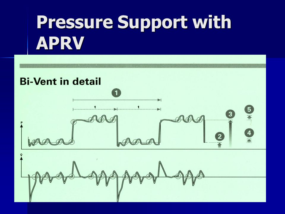 Pressure Support with APRV