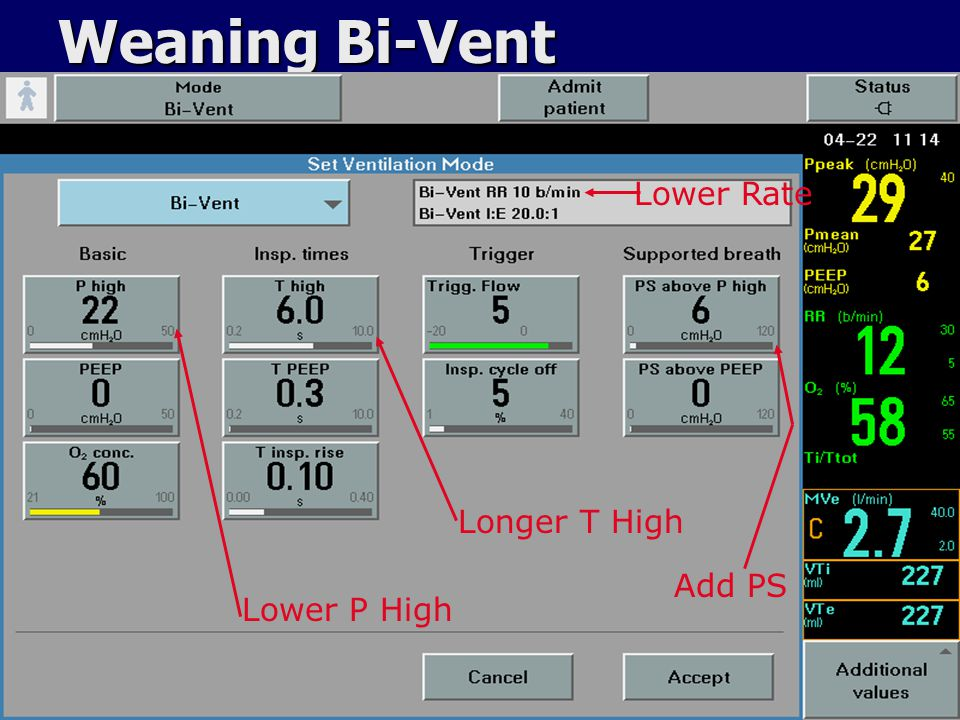 Weaning Bi-Vent Lower Rate Longer T High Add PS Lower P High