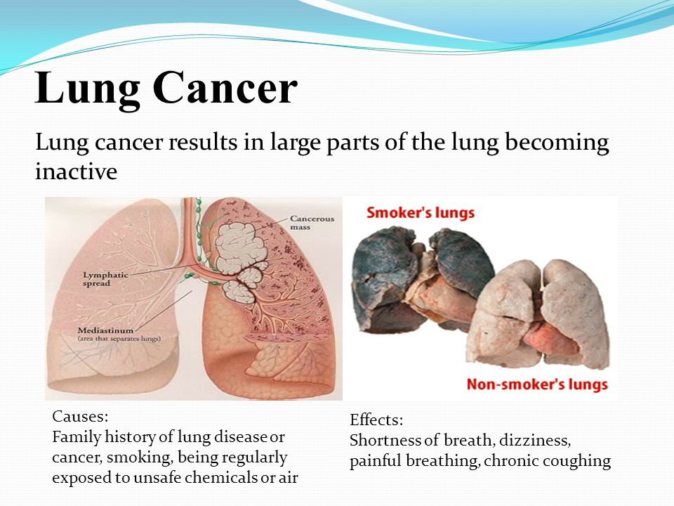 Lung Cancer Lung cancer results in large parts of the lung becoming inactive. Causes: