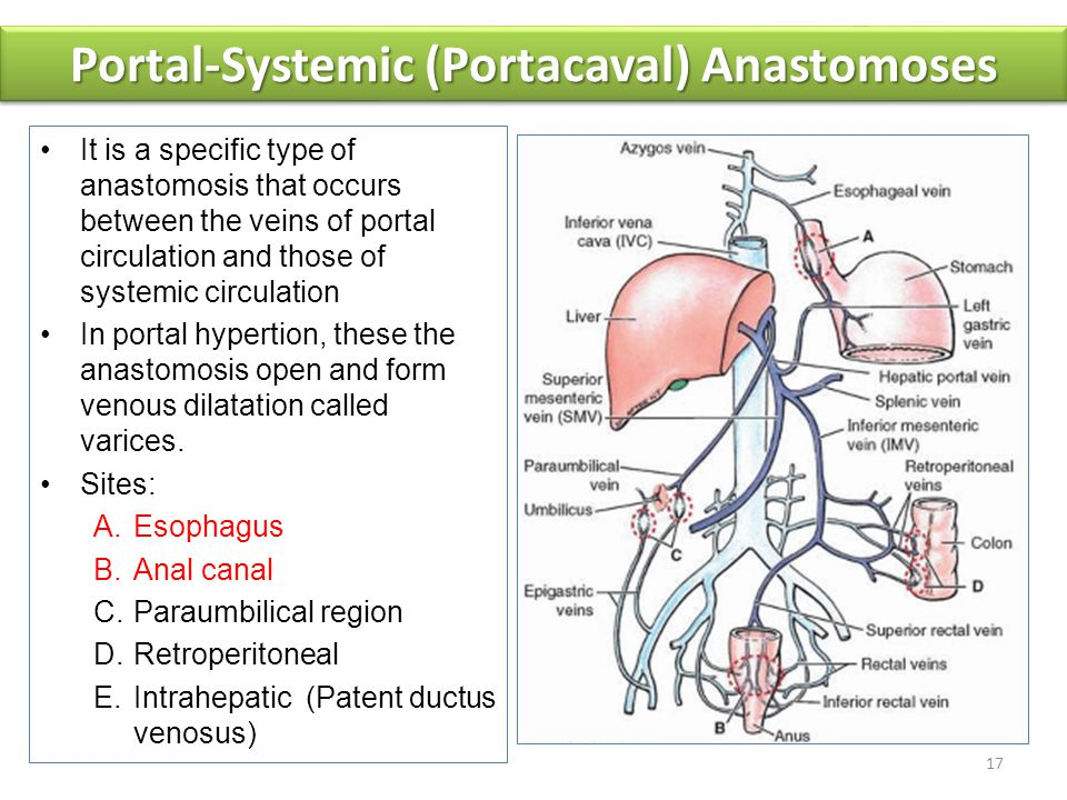 Portal-Systemic (Portacaval) Anastomoses