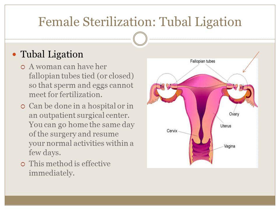 Female Sterilization: Tubal Ligation
