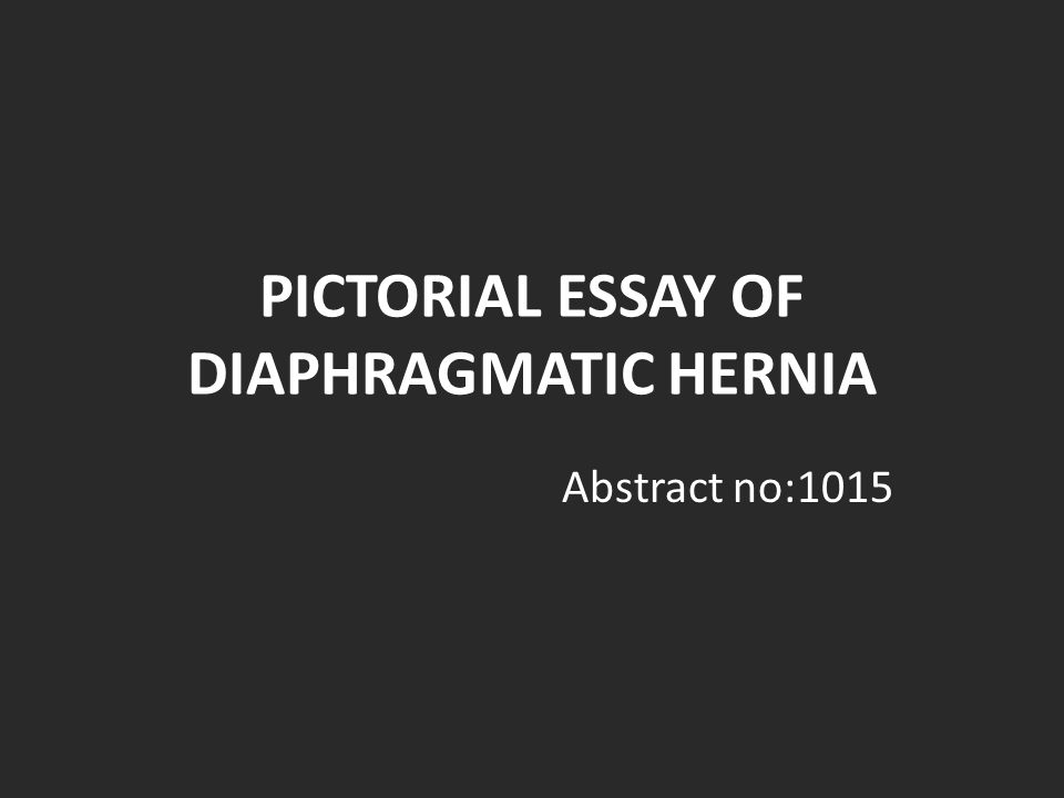 PICTORIAL ESSAY OF DIAPHRAGMATIC HERNIA
