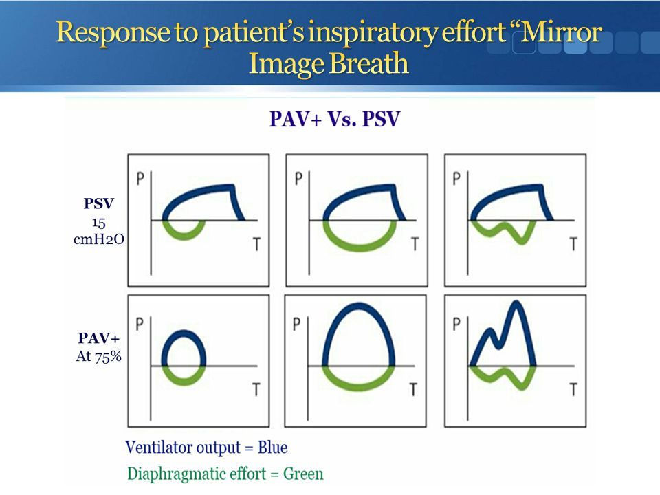Response to patient's inspiratory effort Mirror Image Breath