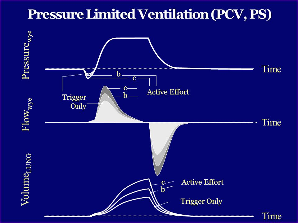 Pressure Limited Ventilation (PCV, PS)