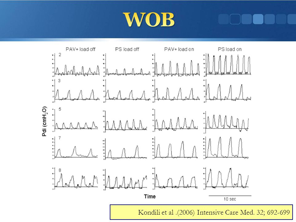 WOB Kondili et al .(2006) Intensive Care Med. 32; 692-699