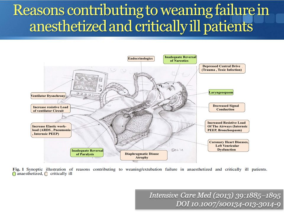 Reasons contributing to weaning failure in anesthetized and critically ill patients