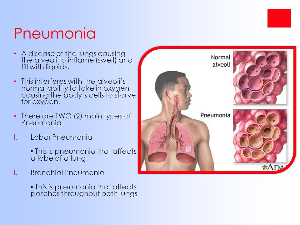 Pneumonia A disease of the lungs causing the alveoli to inflame (swell) and fill with liquids.