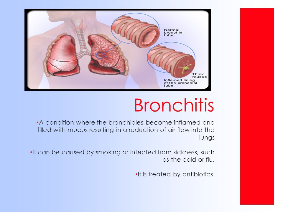 Bronchitis A condition where the bronchioles become inflamed and filled with mucus resulting in a reduction of air flow into the lungs.