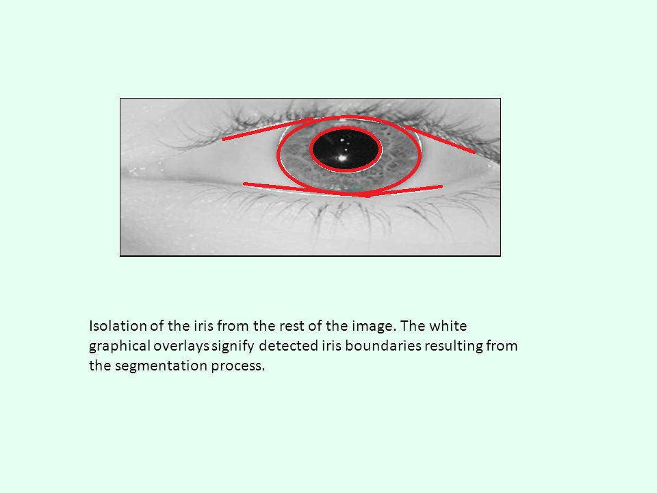 Isolation of the iris from the rest of the image. The white