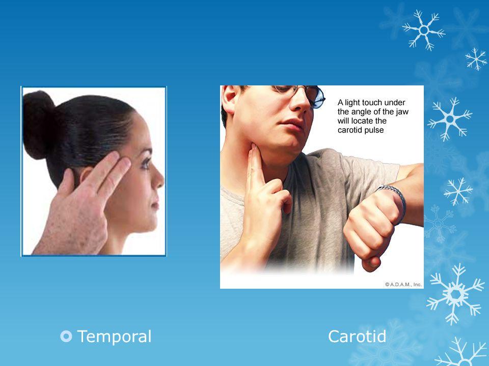 Temporal Carotid