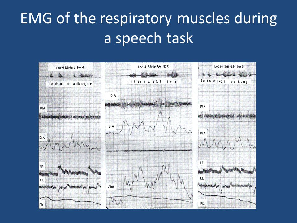 EMG of the respiratory muscles during a speech task