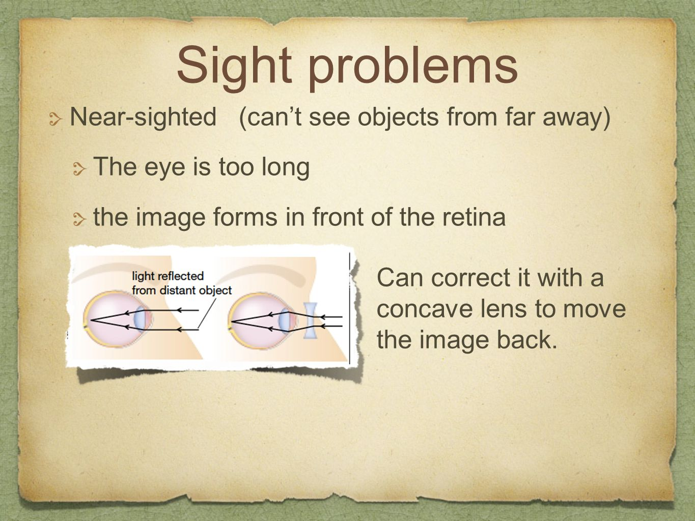 Sight problems Near-sighted (can't see objects from far away)