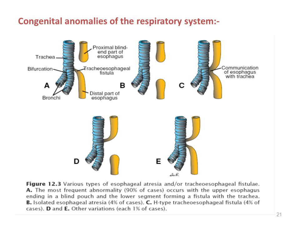 Congenital anomalies of the respiratory system:-