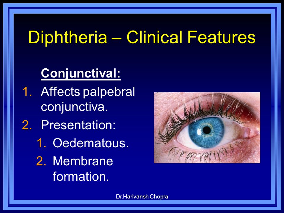 Diphtheria – Clinical Features