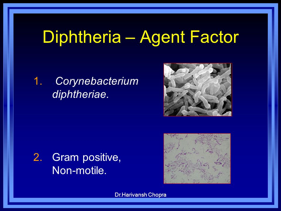 Diphtheria – Agent Factor