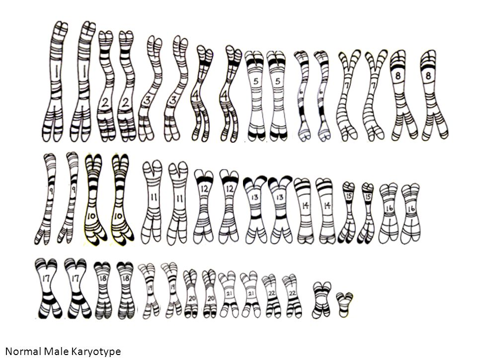 Normal Male Karyotype Normal Male Karyotype