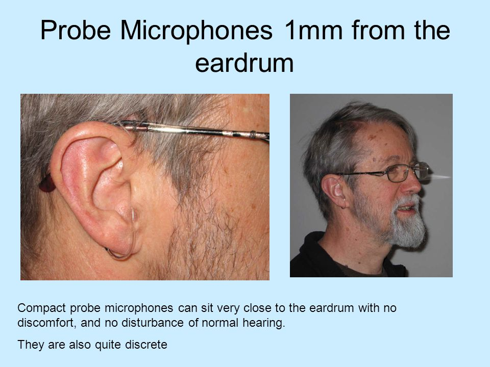 Probe Microphones 1mm from the eardrum