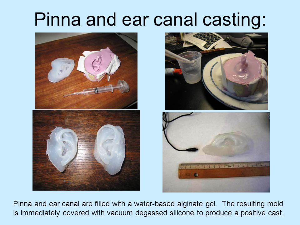 Pinna and ear canal casting: