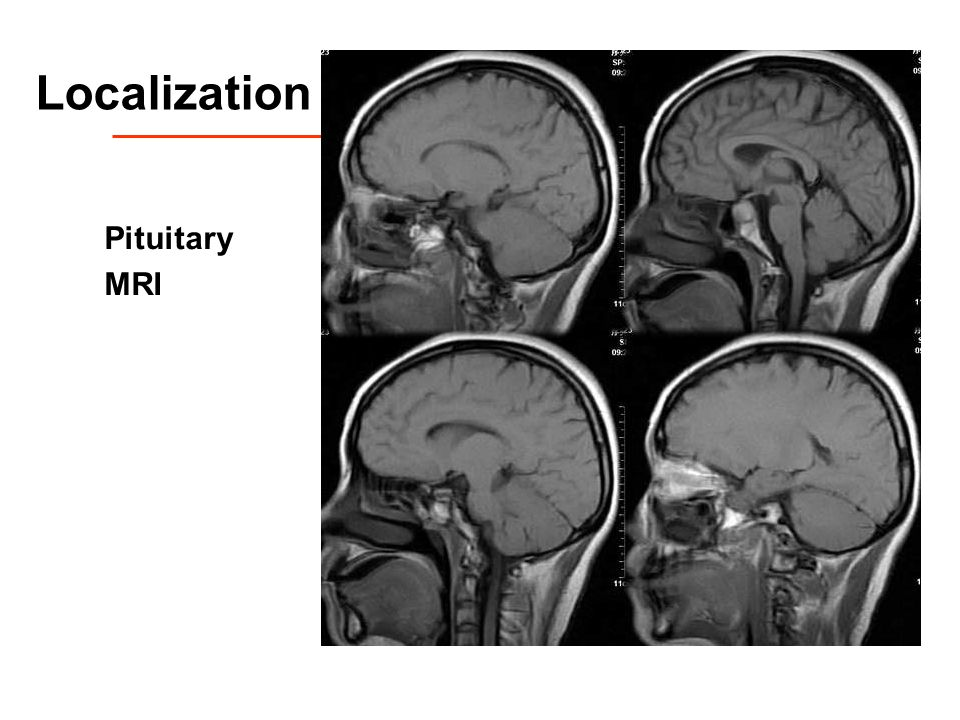 Localization Pituitary MRI
