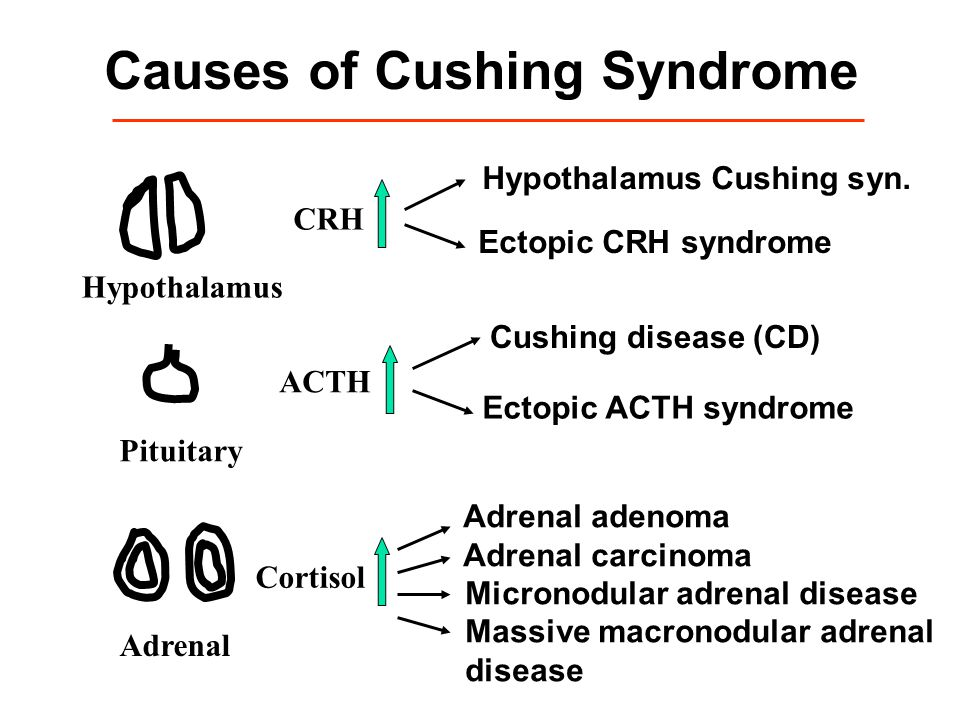Causes of Cushing Syndrome