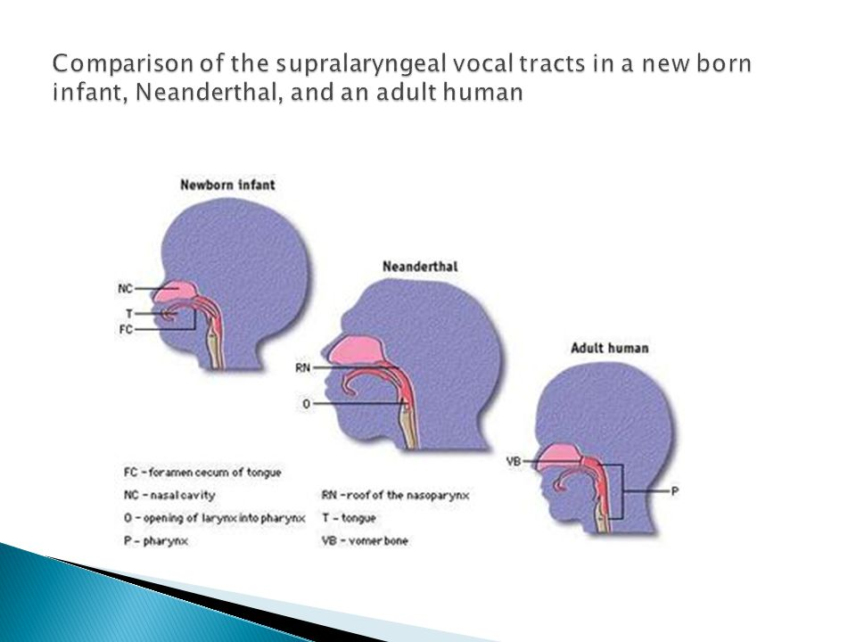 Comparison of the supralaryngeal vocal tracts in a new born infant, Neanderthal, and an adult human