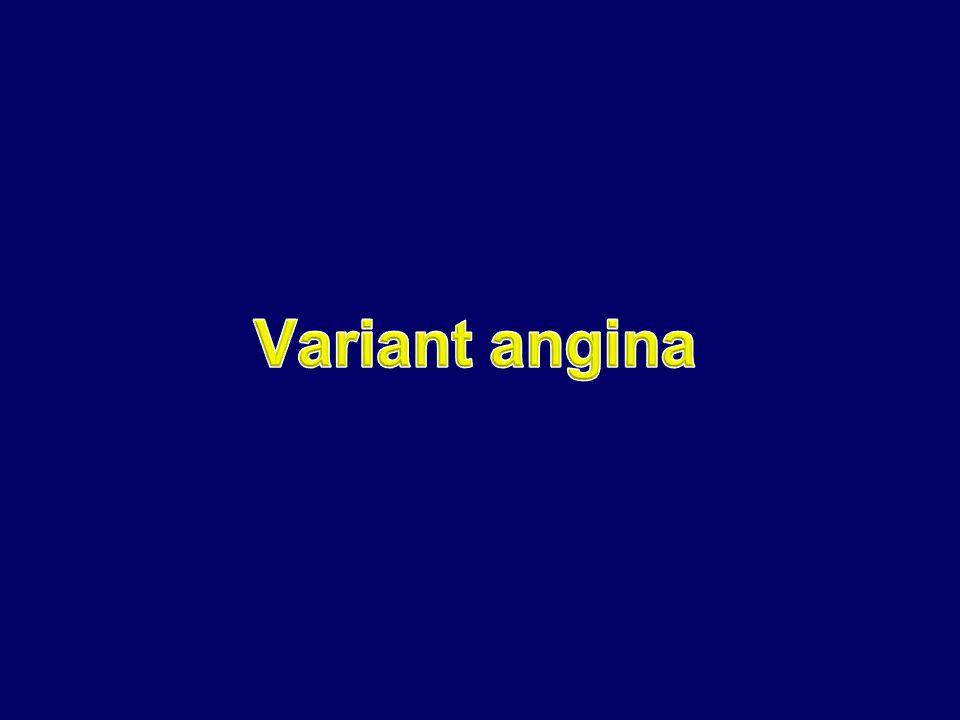 Variant angina