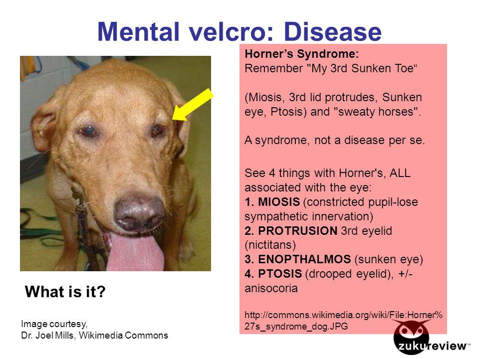 Mental velcro: Disease