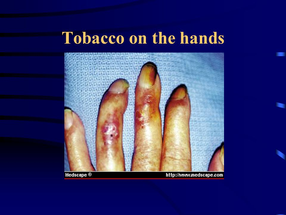 Tobacco on the hands