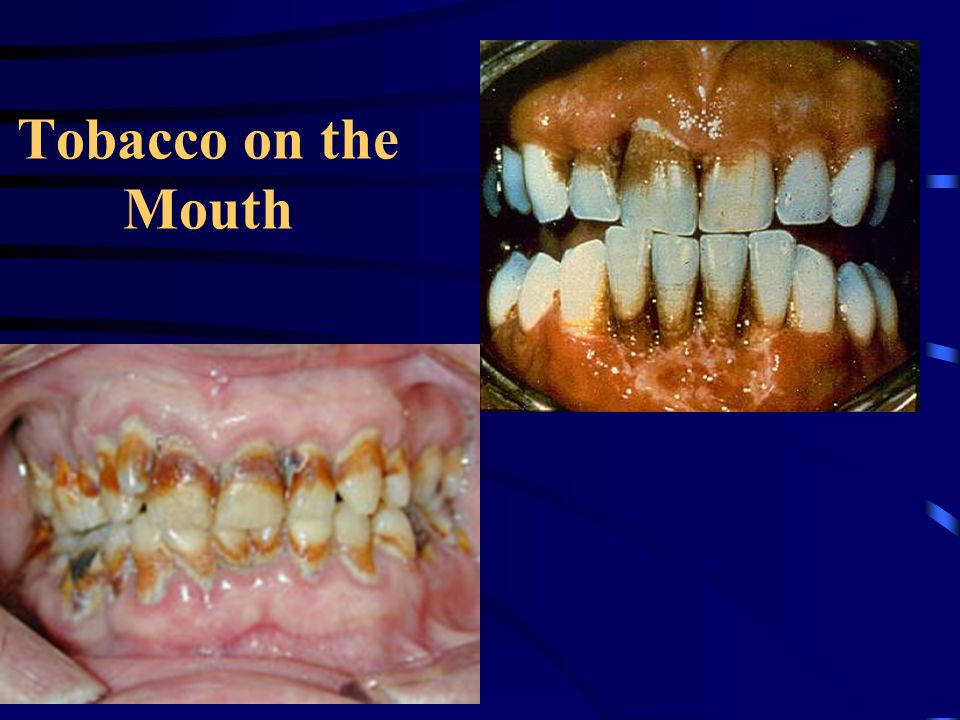 Tobacco on the Mouth