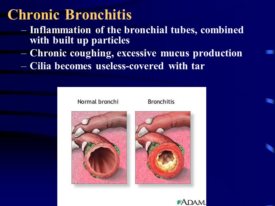 Chronic Bronchitis Inflammation of the bronchial tubes, combined with built up particles. Chronic coughing, excessive mucus production.