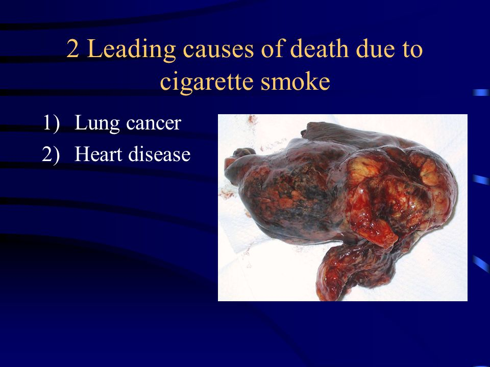 2 Leading causes of death due to cigarette smoke