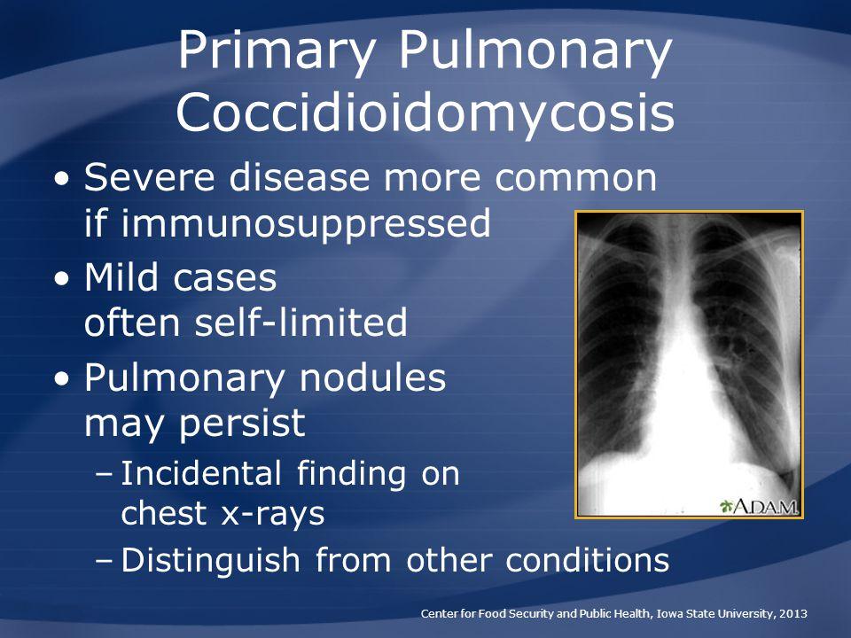Primary Pulmonary Coccidioidomycosis
