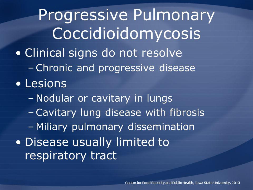 Progressive Pulmonary Coccidioidomycosis
