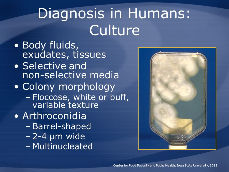 Diagnosis in Humans: Culture