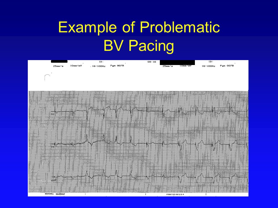 Example of Problematic BV Pacing