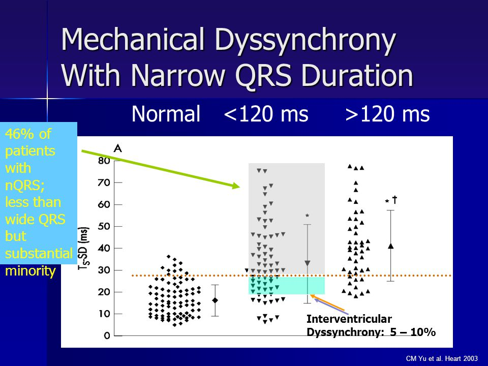 Mechanical Dyssynchrony With Narrow QRS Duration
