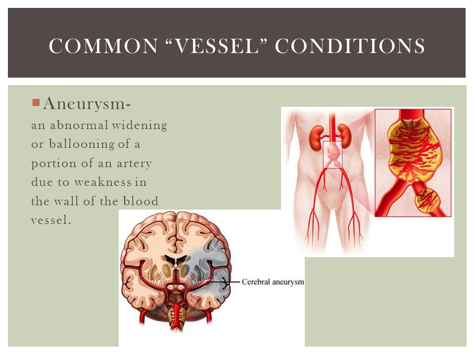 Common vessel conditions