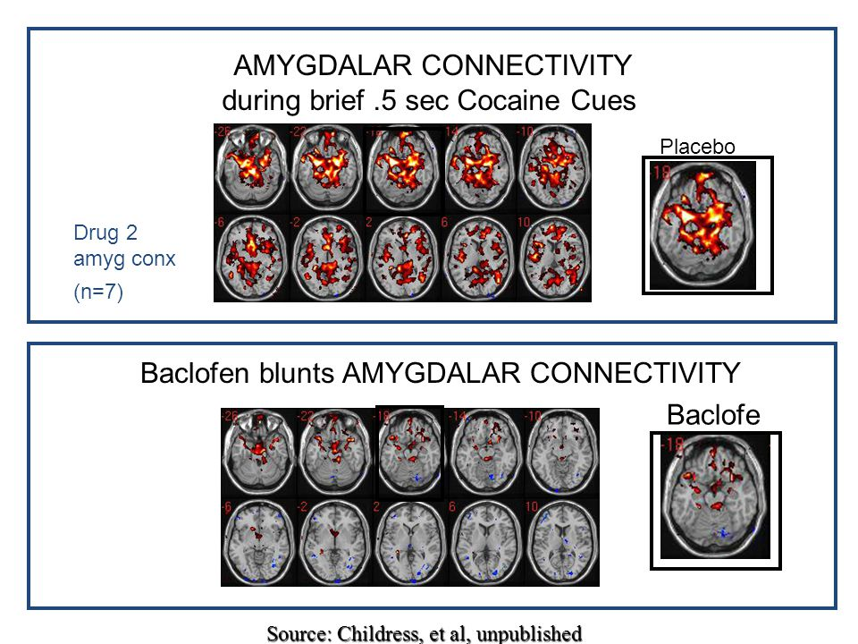 AMYGDALAR CONNECTIVITY during brief .5 sec Cocaine Cues