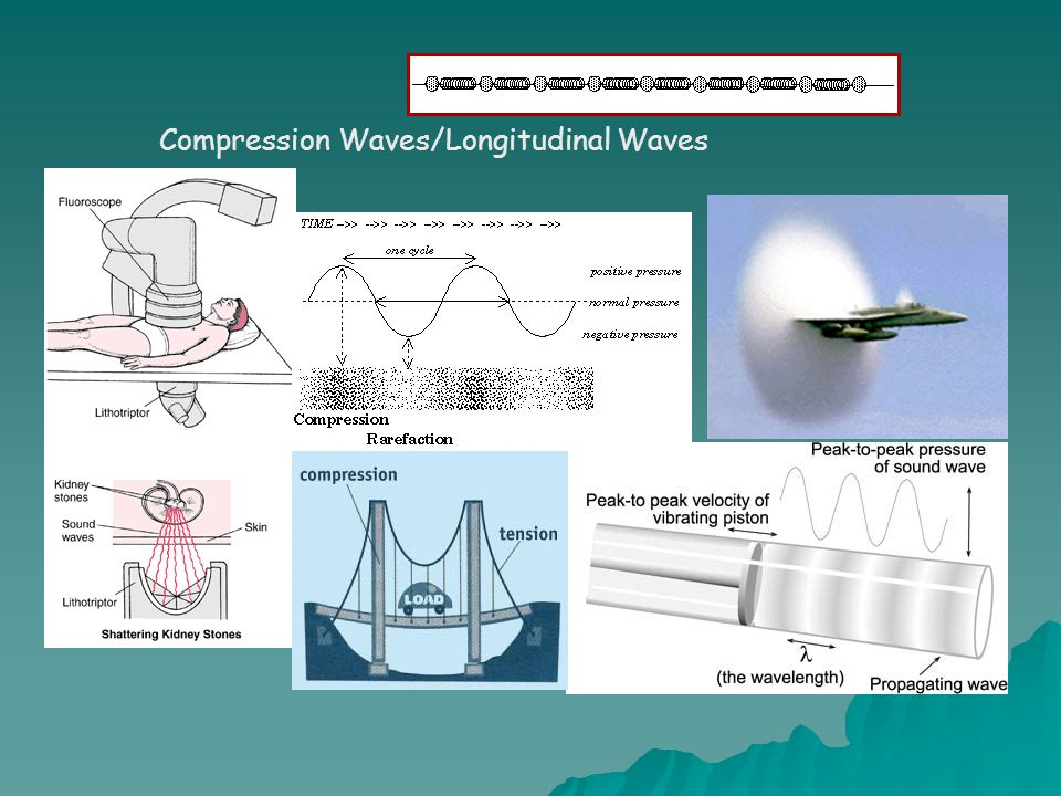Compression Waves/Longitudinal Waves