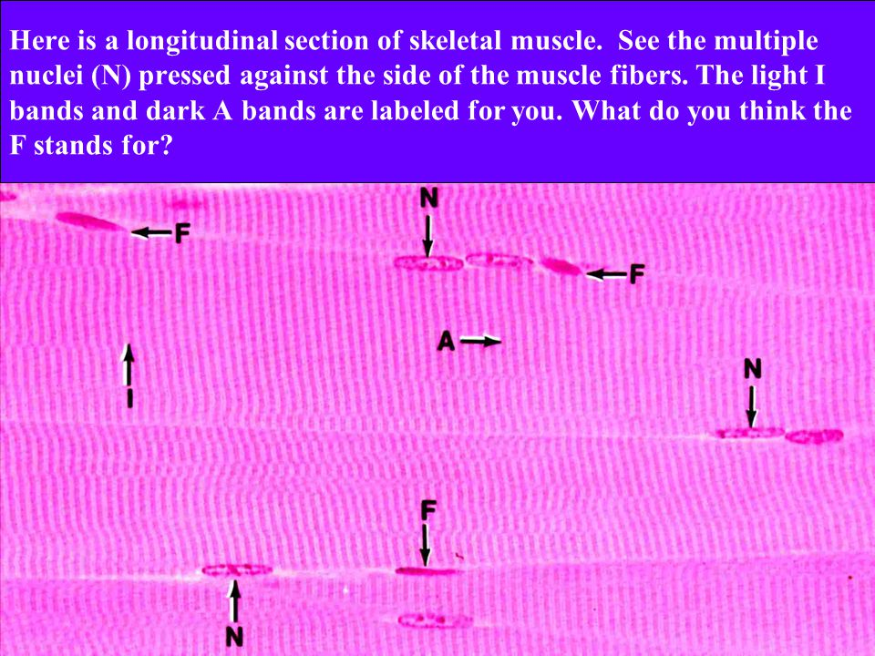 Here is a longitudinal section of skeletal muscle